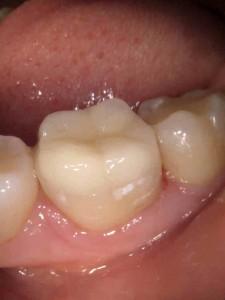 gotowa odbudowa zęba