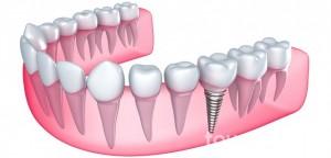 implanty-zebowe- C.S.Nova Dentica