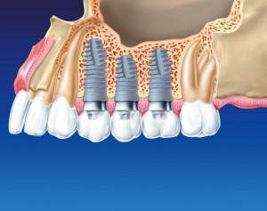 implanty-zebowe-Nova Dentica