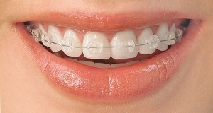 aparat -nova dentica