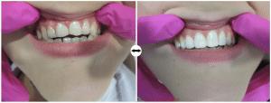 Pacjent nie decydował się na leczenie ortodontyczne,